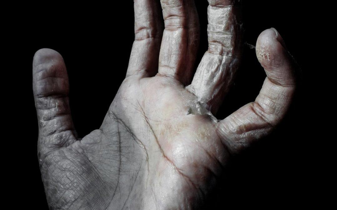 COV-19 DIY DRY HANDS REMEDY